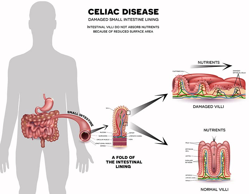 digestive nutrition clinic what is celiac disease? celiac disease intestine celiac disease digestive nutrition clinic